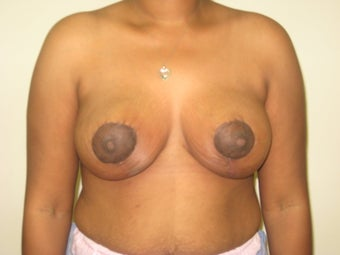 Mastopexy, breast lift after 365124