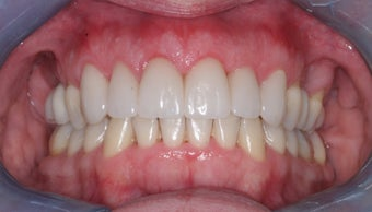 Invisalign, implants, whiteing and veneers after 372730