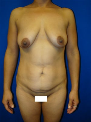 Tummy tuck, Breast Lift, Breast Augmentation before 91038