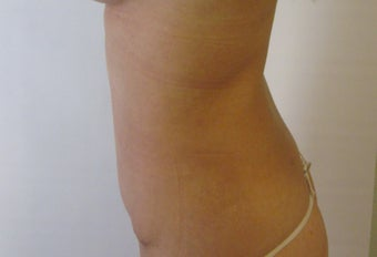 Liposuction  562466