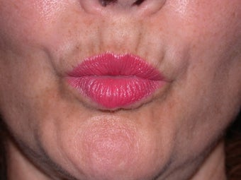 Before and After Botox to Upper Lip Lines before 53817