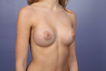 Breast Augmentation after 467316