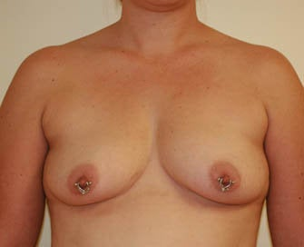 Augmentation Mammaplasty (Breast Implants) before 226487