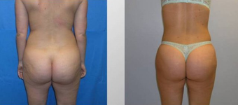 Butt Augmentation before 256431