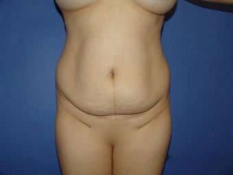 Tummy tuck before 547997