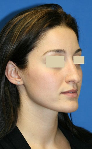 Rhinoplasty Gallery before 129745