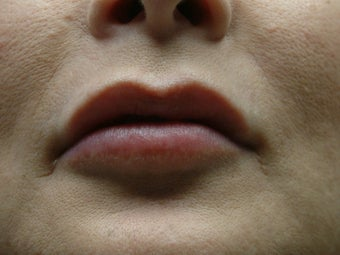 Lip Augmentation after 343222
