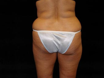 Brazilian Buttocks Lift before 246911