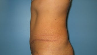 tummy tuck after 285013