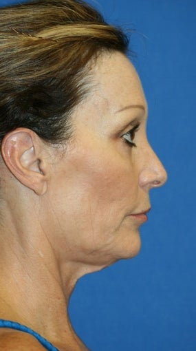 Facelift with Extended Necklift and Upper Blepharoplasty 641627