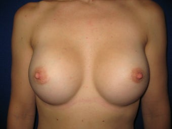 Breast Augmentation after 621781