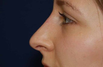 Non-Surgical Rhinoplasty after 513469