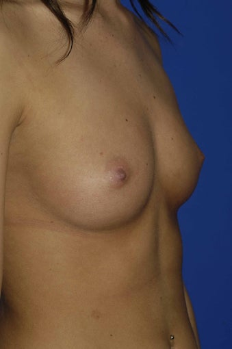 Silicone Breast Augmentation before 546429