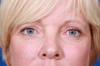 Blepharoplasty / Eyelid Surgery after 289211