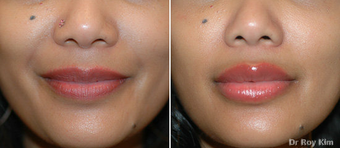 Fat transfer to upper and lower lips before 277749