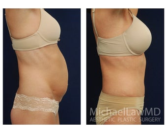 Abdominoplasty - Tummy Tuck 396021