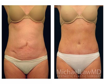 Abdominoplasty - Tummy Tuck before 396132