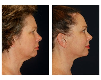 Facial Rejuvenation 374118