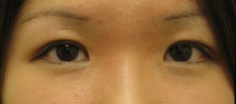 Double eyelid surgery by CO2 laser after 259535