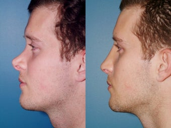 Revision rhinoplasty after 334244