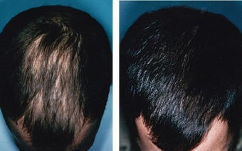 Medical treatment for hair loss (no surgery) before 369176