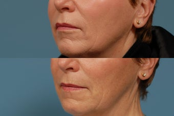 Sculptra  area around mouth after 409236