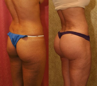 Brazilian buttock augmentation with fat grafting to the buttocks with liposuction in Los Angeles before 583430