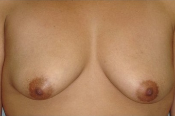 Breast Augmentation with Vertical Lift