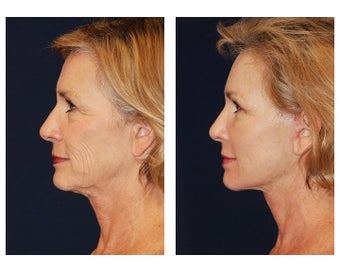 Neck Lift before 347519