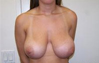 Breast Reduction before 370601