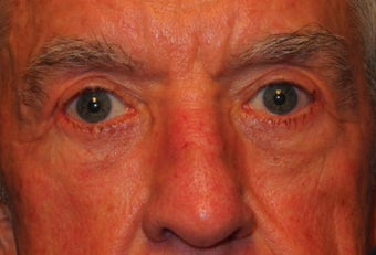 Extended lower lid blepharoplasty after 480035