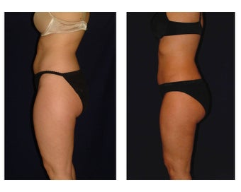 Liposuction before 286639