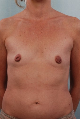 Breast Augmentation, Bilateral Areola Reduction, Correction of Right Inverted Nipple before 240387