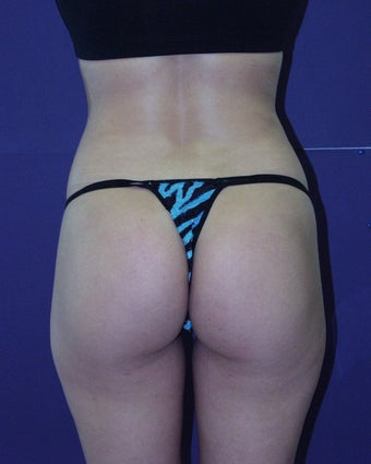 Strategic liposuction after 135029