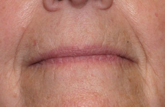 Restylane injection to nasolabial folds before 240182