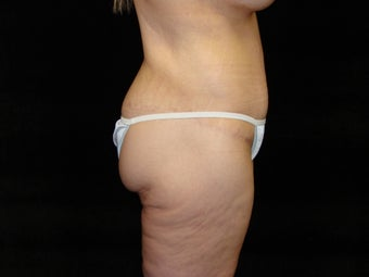 Body Lift, Outer Thigh Lift, Buttocks Lift after 203465