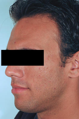 Laser Acne Scar Removal after 82965