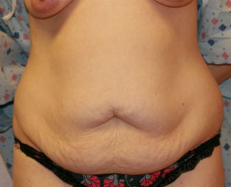Tummy tuck before 573462