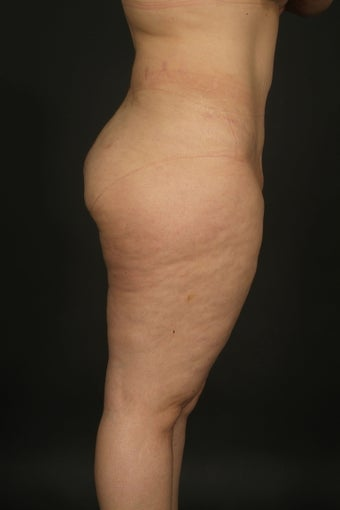 "Abdominoplasty and Liposuction ""Mommy Makeover"" after 132413"