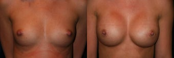Breast Augmentation before 382853
