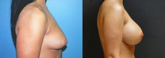 Large Breast Augmentation, 500cc Silicone Implants before 352767