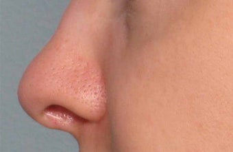Juvederm in the nose before 343321