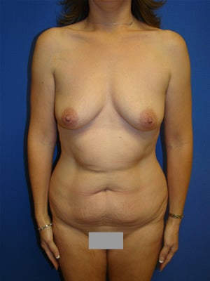 Abdominoplasty Liposuction/Breast Augmentation  before 98751