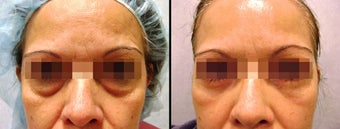 Lower Eyelid(Blepharoplasty) Surgery before 650667