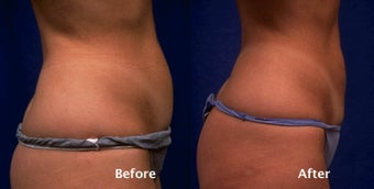 Tummy liposuction before 124244