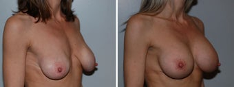 Breast implant revision after 332757
