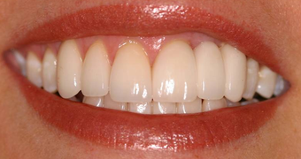 Invisalign, whitening, porcelain veneers and porcelain bridge after 119961