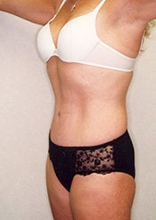 Tummy Tuck after 388159