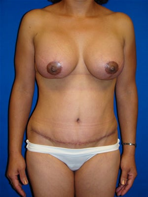 Tummy tuck, Breast Lift, Breast Augmentation after 91038
