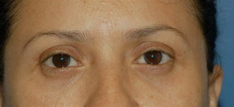 Upper and lower lid blepharoplasty and Fat Transfer to lower lids and midface after 307125